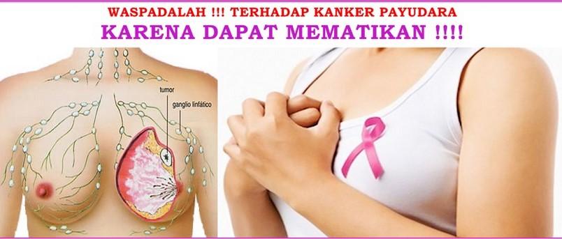 Mengatasi Kanker Payudara Dengan Nutrisi