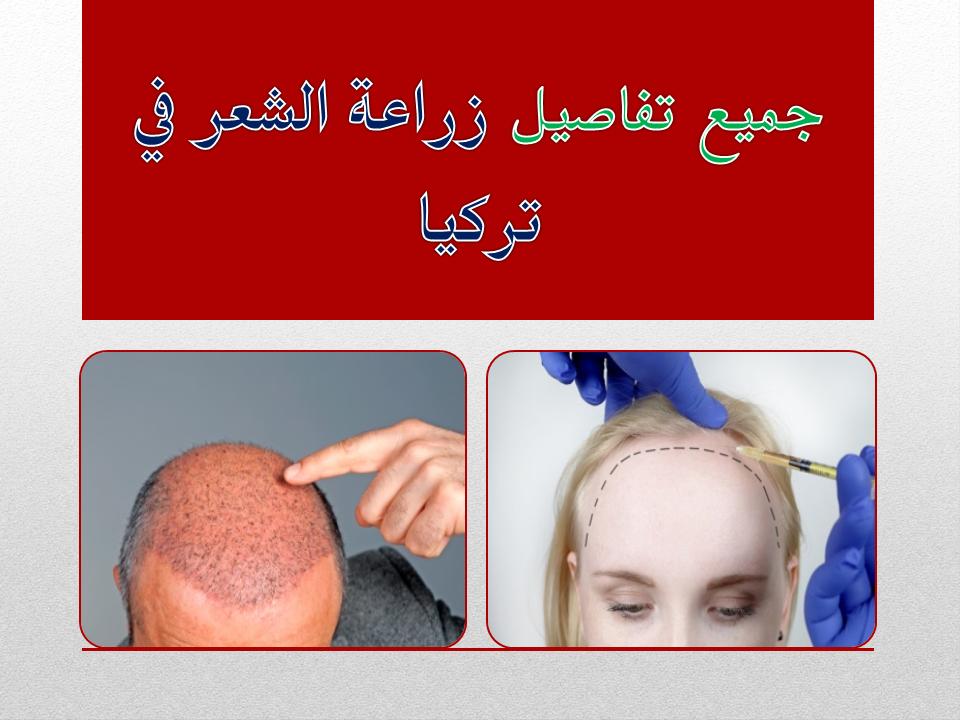 زراعة الشعر في تركيا اسطنبول و تكاليف زراعة الشعر في تركيا اسطنبول عملية زراعة الشعر وما هي مخاطر وطريقة زراعة الشعر في تركيا