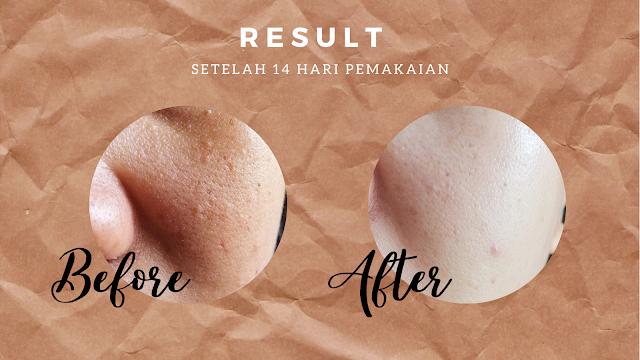 Rekomendasi Skincare untuk Mengecilkan Pori-pori