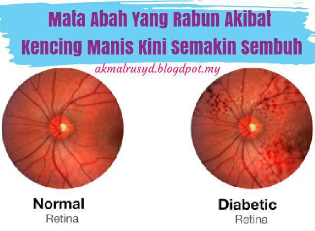 mata rabun akibat kencing manis diabetes