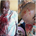 Former APC Chairman's Head Broken After Defecting To Another Party. Photos