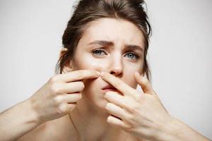 5 Produk Skincare Lokal Terbaik untuk Kulit Berjerawat