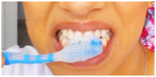 Como arreglar dientes amarillo