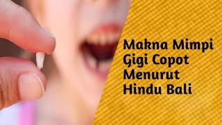 Makna Mimpi Gigi Copot Menurut Hindu Bali