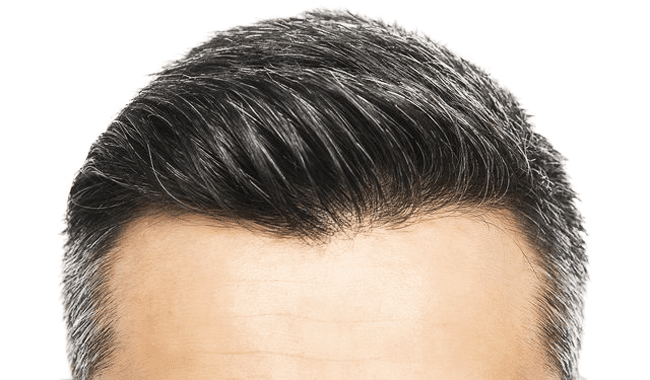Causes of graying on the head