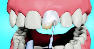 dent ébréchée que faire