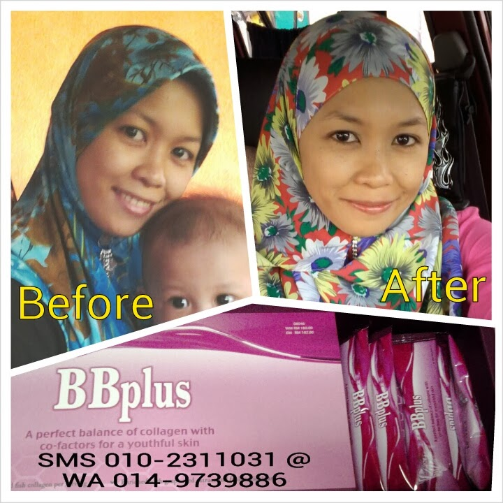 BBplus collagen testimonial Januari 1