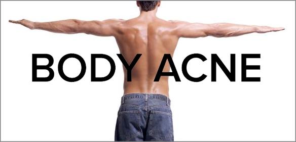 Treat Body Acne