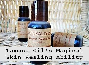 https://foreverhealthy.blogspot.com/2012/04/tamanu-oils-magical-skin-healing.html#more