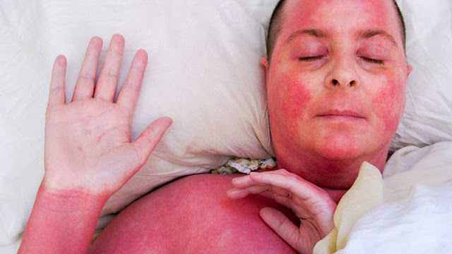 Red Skin Treatment - Tips to Overcome Skin Redness