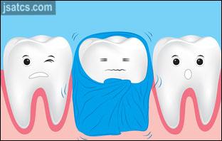 حساسية الاسنان بعد تركيب العدسات