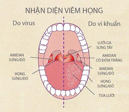 nhan-dien-viem-hong-hat
