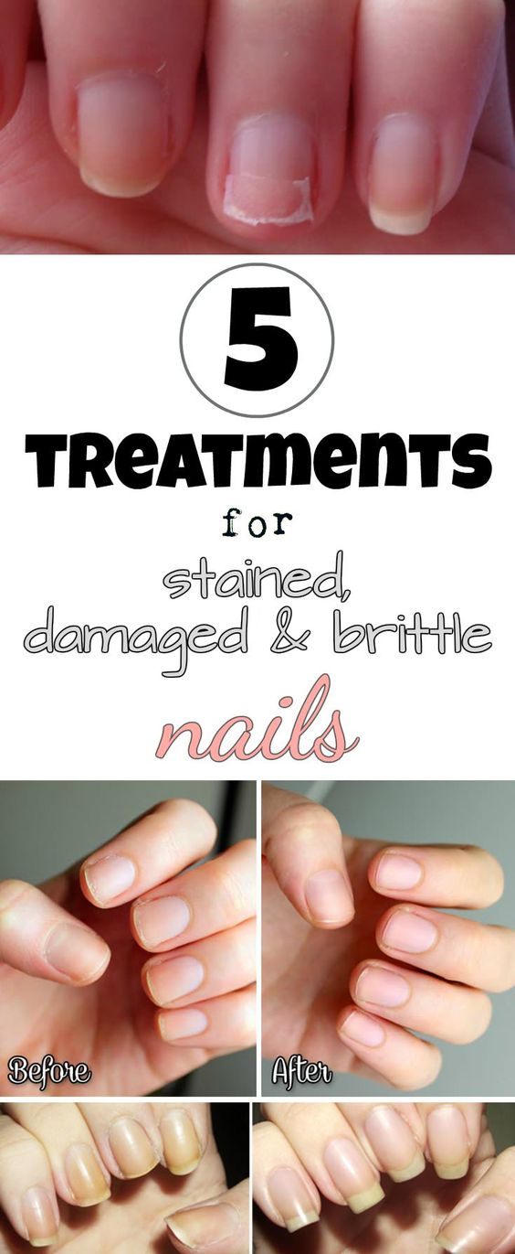 5 treatments for stained, damaged and brittle nails