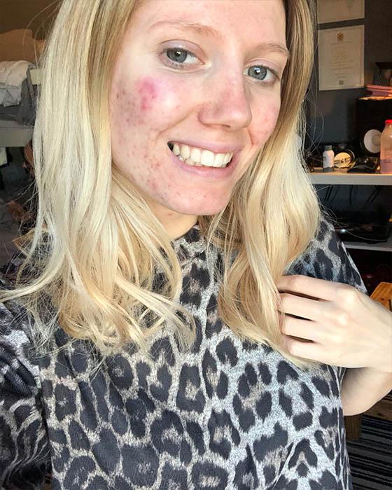 Fotos tumblr con acné para verte lindisima