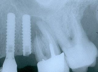 implante de diente roto o quebrado