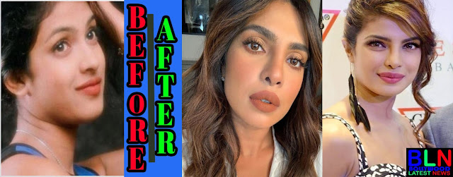 PRIYANKA CHOPRA Bollywood Actresses Before and After Plastic Surgery