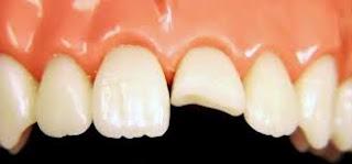 Răng bị gãy một nửa vẫn có thể phục hồi lại được