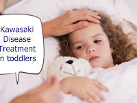 Kawasaki Disease Treatment in toddlers