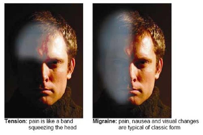 Image result for migrena