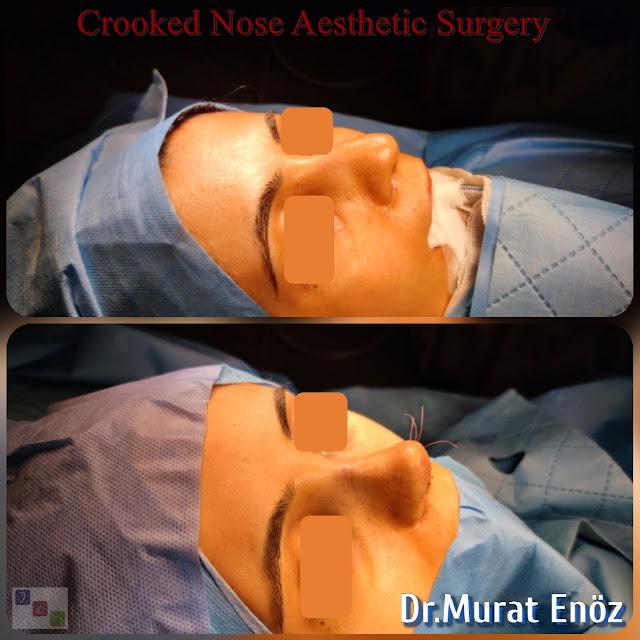 Crooked Nose Job Turkey