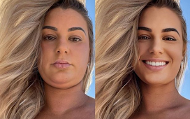 Influencer shares same photo before and after editing to show how 'fake' Instagram can be