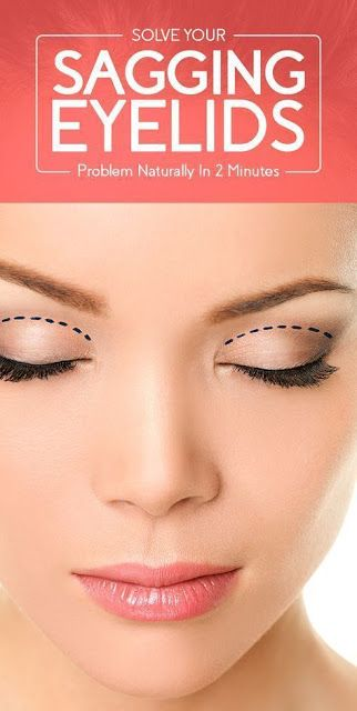 Want To Get Ride Of Sagging Eyelids Problem In Just 2 Minutes