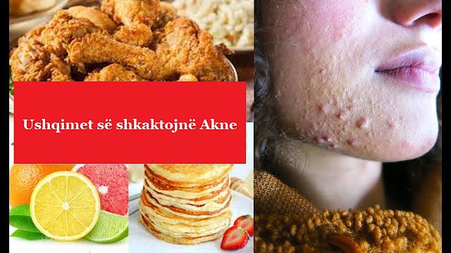 ushqimet që shkaktojnë akne