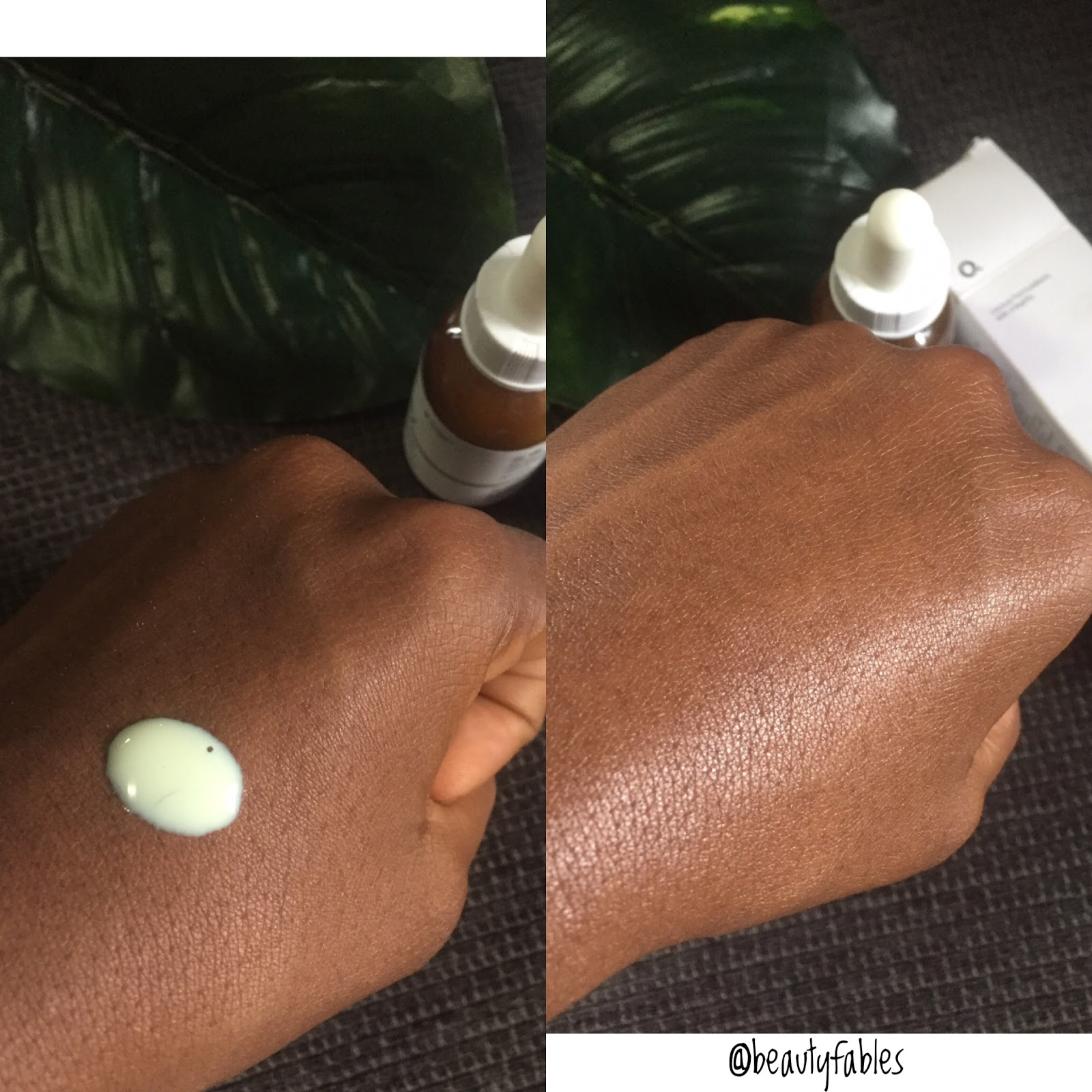 In depth Review of The Advanced Retinoid 2% by The Ordinary Abnormal Beauty Company 4