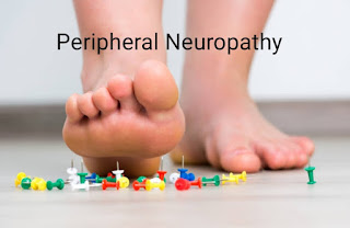 Peripheral neuropathy : type,causes,symptoms and Treatment of peripheral neuropathy, diabetes complication