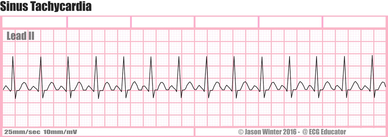 Ecg Educator Blog Six Second Ecg Rhythm Strips