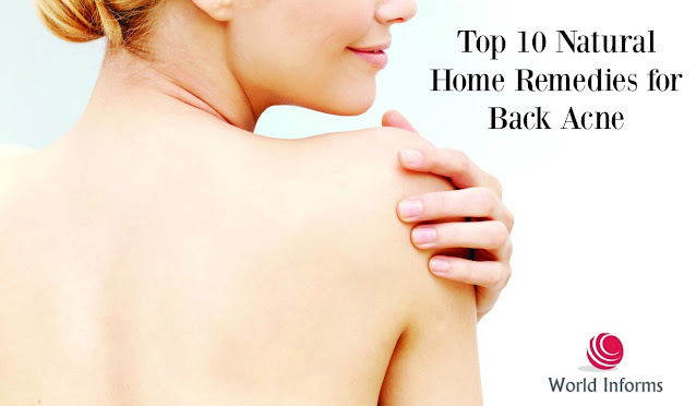 Top 10 Natural Home Remedies for Back Acne