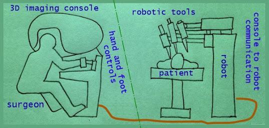 Sketch of 3D robotic surgery step