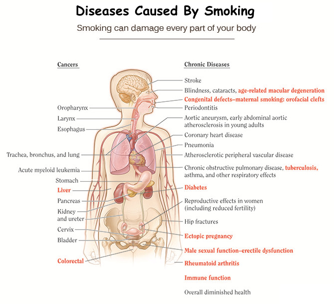 Diseases Caused By Smoking