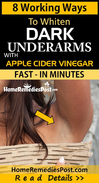 Apple Cider Vinegar For Dark Underarms, How To Use Apple Cider Vinegar For Dark Underarms, How To Get Rid Of Dark Underarms, Home Remedies For Dark Underarms, Dark Underarms Home Remedies, Lighten Dark Underarms Fast, Whiten Dark Underarms, Dark Underarms Treatment, Lighten Dark Underarms, How To Treat Dark Underarms, Dark Underarms Remedies, Remedies For Dark Underarms, Treatment For Dark Underarms, Best Dark Underarms Treatment, How To Get Rid Of Dark Underarms Fast,