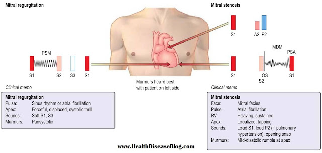 Signs of Mitral Stenosis