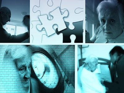Are You at Risk for Getting Alzheimer's disease?
