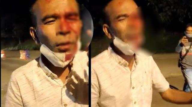 Pria Bersimbah Darah di Posko Penyekatan PPKM Solok-Padang, Ngaku Matanya Ditusuk Petugas dan Buta
