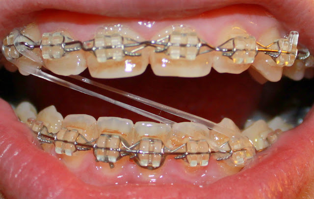 gross braces rubber bands