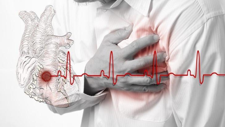 Intervensi Kardiovaskular