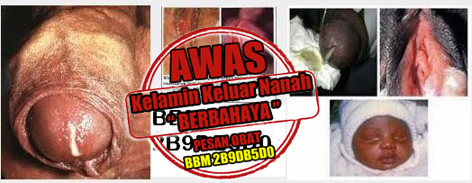 Obat Kencing Nanah Alternatif Herbal