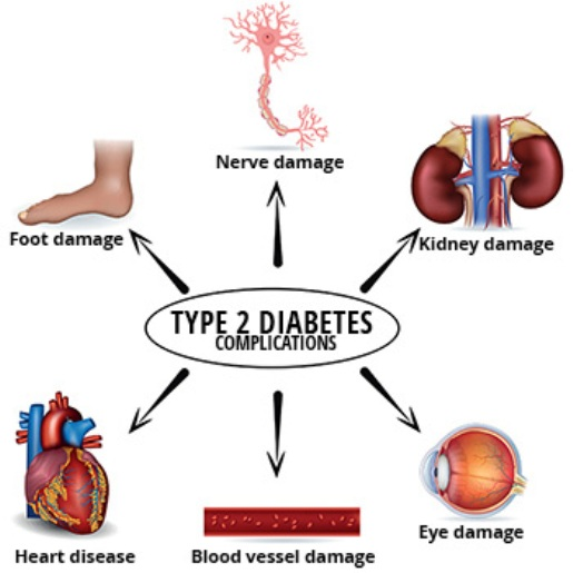 Complications Of Type 2 Diabetes