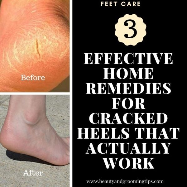 before and after photos of cracked skin on feet which heals