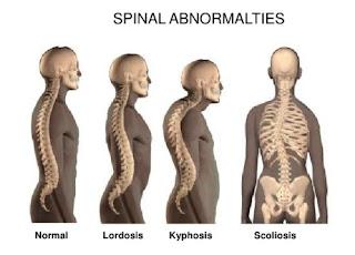 Kelainan tulang punggung