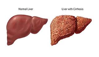 লিভার সিরোসিস বা যকৃতের শীর্ণতা ( Cirrhosis of the Liver) ও হোমিওপ্যাথিক চিকিৎসা