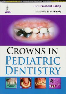Crowns in Pediatric Dentistry by Prashant Babaji