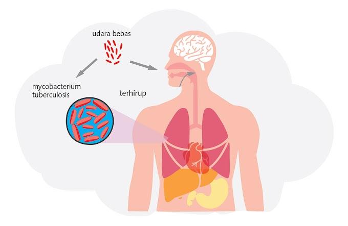 Aplikasi Praktis Terapi VCO, Madu, dan Nutrisi untuk TBC