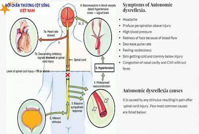 Tăng phản xạ tự phát của người bị chấn thương cột sống