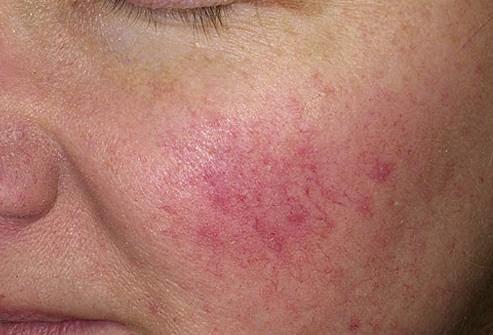 les rougeurs sur le visage