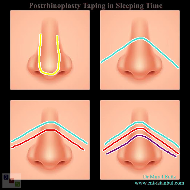 how to reduce thick skin on nose, steroid injection after rhinoplasty, sleeping time taping,