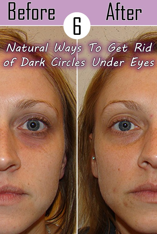Natural Ways To Get Rid of Dark Circles Under Eyes All ...